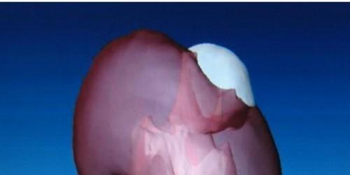 Что такое киста на почке: причины появления, диагностика, лечение