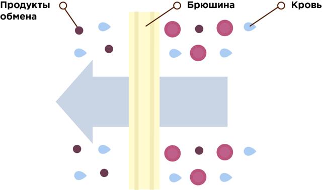 Перитонеальный диализ и порядок его проведения: виды, показания и противопоказания