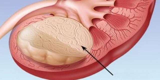 Ангиолипома почки: симптоматика заболевания и его диагностика