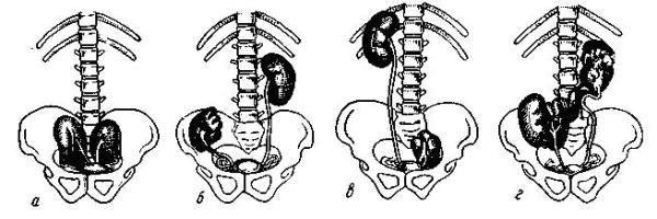 Ротация почки: виды, причины, симптомы, лечение, прогноз (возможные осложнения)