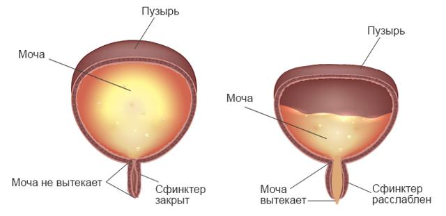 Может ли лопнуть мочевой пузырь у человека и в в каких случаях, первая помощь и лечение