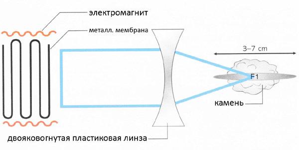 Что такое дистанционная литотрипсия: показания к проведению