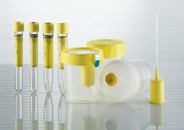 Анализ мочи на флору и чувствительность к антибиотикам