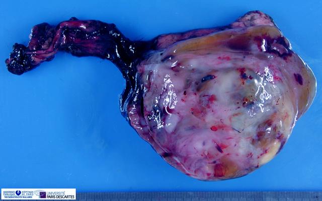 Саркома мочевого пузыря: симптомы, стадии развития, лечение, прогноз