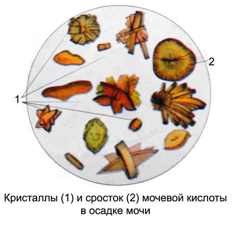 Мочевая кислота в моче: характерные симптомы и методы лечения