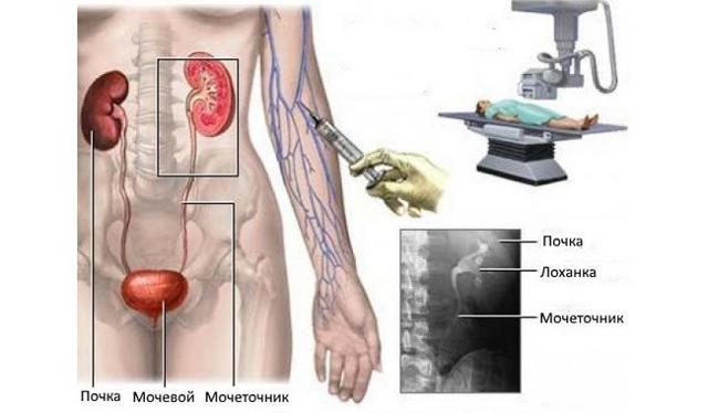 Инциденталомы надпочечников: разновидности, симптомы, лечение, прогноз и осложнения