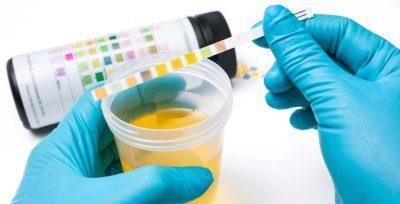 Бактерии в анализе мочи: причины и симптомы бактериурии