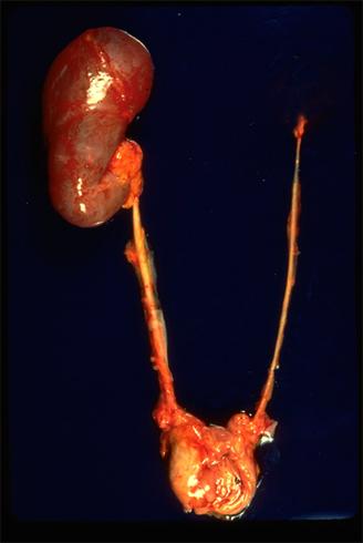 Гипертрофия почки: виды и особенности патологии