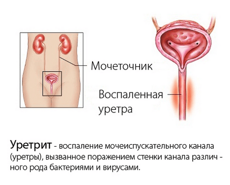 Гипертрофия стенок мочевого пузыря: виды и причины и лечение