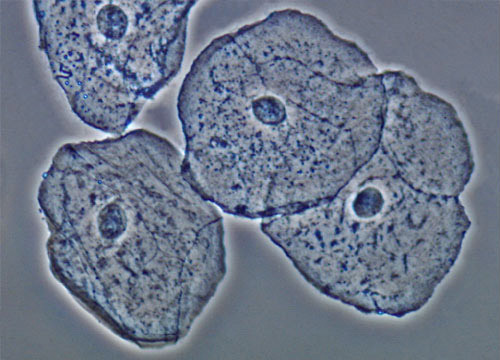 Эпителий в моче: о каких патологиях говорит и как от него избавится