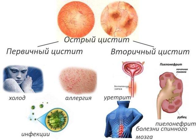 Цистит у ребенка (грудничка, 2, 3, 4, 5 лет): признаки и симптомы, лечение и профилактика