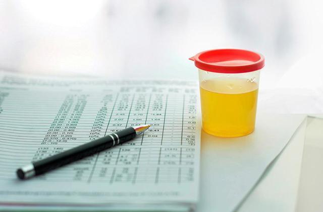 17-КС в моче: проведение исследования и расшифровка результатов, норма и патология