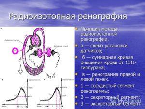 Радиоизотопная ренография почек: суть диагностики