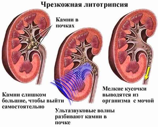 Дробление камней в почках ультразвуком: особенности процедуры, показания и противопоказания