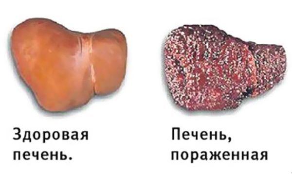 Уробилиноиды в моче: что это значит и насколько это опасно