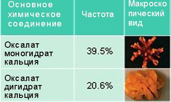 Оксалаты в моче: причины заболевания и факторы риска