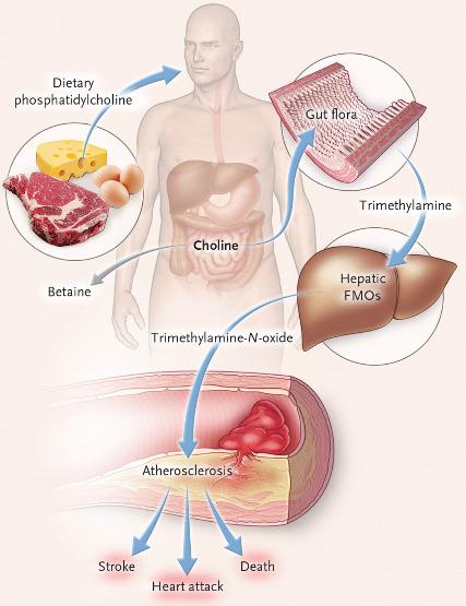 Триметиламинурия: возможные причины и лечение