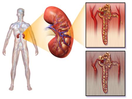 Анализ мочи при сахарном диабете: показания, расшифровка результатов (норма и патология)
