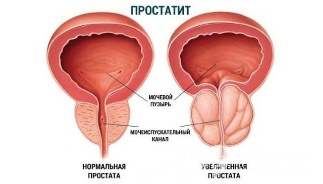 Олигурия: формы, причины, диагностика, методы лечения