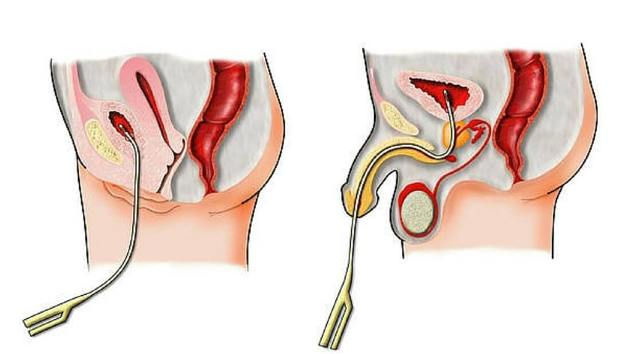 Что такое цистография: показания к проведению обследования