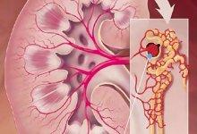 Чем опасна добавочная почка: причины патологии и диагностика