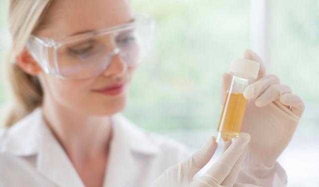Суточный анализ мочи на белок: норма результатов и отклонения