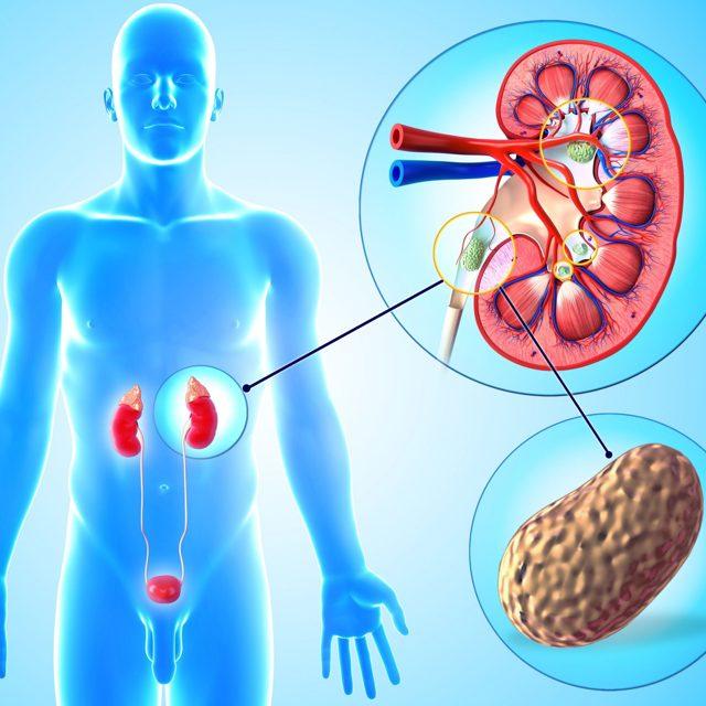 Нефролитиаз и его виды: симптомы заболевания и лечение