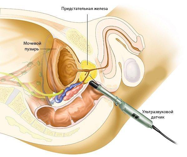 Как наполнить мочевой пузырь перед УЗИ: показания и подготовка