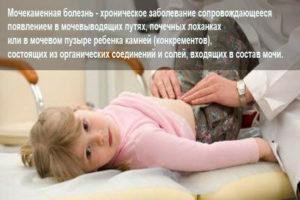 Мочекаменная болезнь у детей: причины, симптомы (первые признаки), диагностика, лечение и профилактика