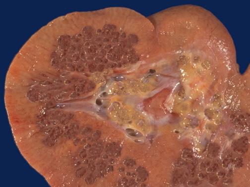 Губчатая почка: причины аномалии, симптомы, лечение, осложнения