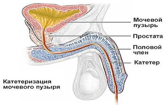 Катетеризация мочевого пузыря у мужчин и женщин