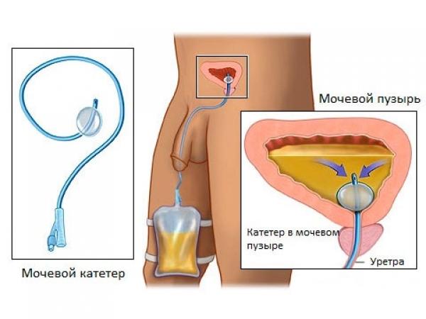 Промывание мочевого пузыря: показания, техника процедуры, препараты, осложнения