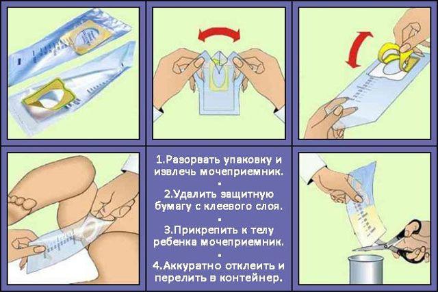 Как правильно сдать анализ мочи по Нечипоренко
