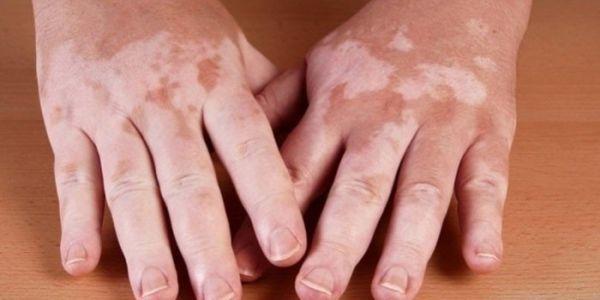Гиперплазия надпочечников - симптомы, диагностика и лечение