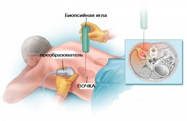 Биопсия мочевого пузыря: виды, показания, ход процедуры и расшифровка результатов, реабилитация