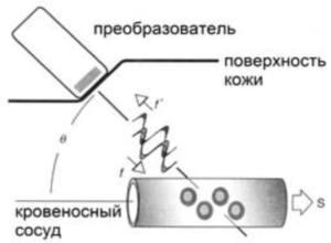 Ультразвуковая доплерография сосудов почек: подготовка к обследованию