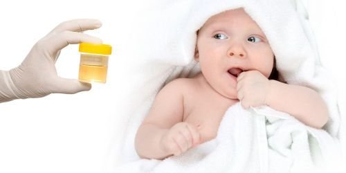 Мочесборник для новорожденных: как использовать у мальчиков и девочек