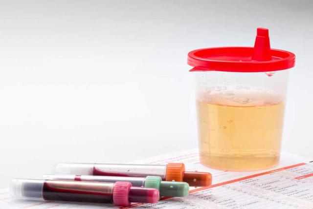 Появление в анализе мочи гемоглобина: причины, при каких болезнях, лечение