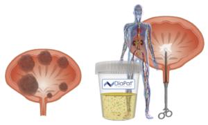 Онкомаркеры мочевого пузыря и почек: виды, методы диагностики (выявления), расшифровка результатов