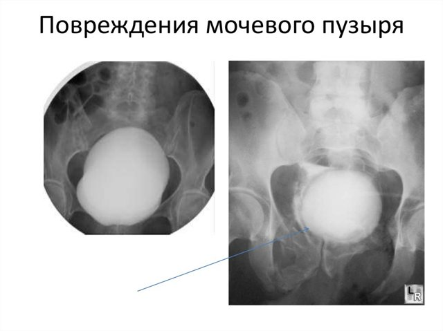 Разрыв мочевого пузыря: лечение и возможные осложнения