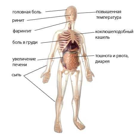 Атипичная пневмония: что это такое, симптомы у взрослых и лечение