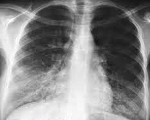 Микоплазма пневмония у детей: диагностика, симптомы и лечение