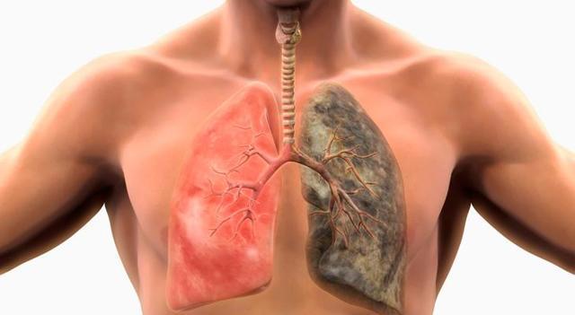 Устойчивый туберкулез - как вылечить заболевание