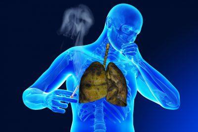 Туберкулез и курение - почему курение провоцирует заболевание