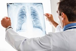 МБТ туберкулез - методы для раннего обнаружения инфицирования