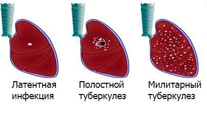 Удаление туберкуломы: как ее удаляют и дальнейшее лечение
