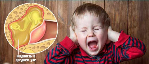 Бывает ли температура при отите у ребенка