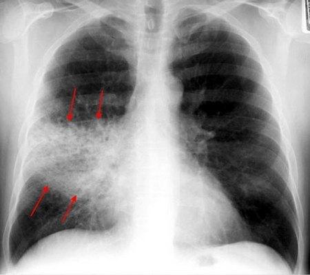 Крупозная пневмония или плевропневмония: симптомы и лечение
