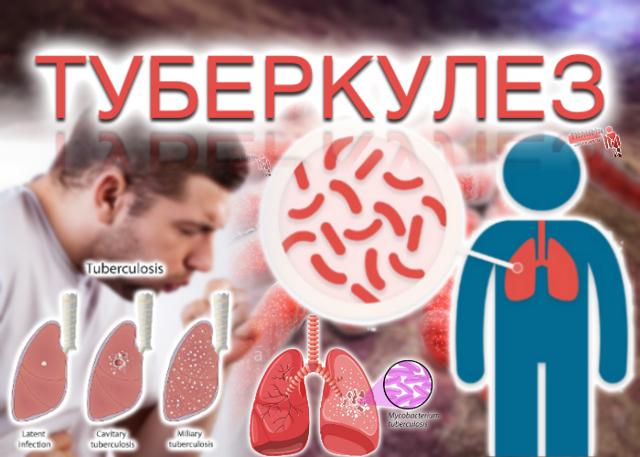 Туберкулинодиагностика у детей - что это, виды реакции, результаты