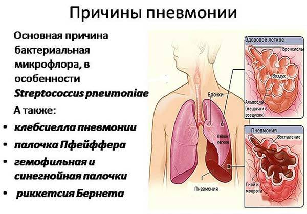 Температура при пневмонии у детей: какая и как снизить